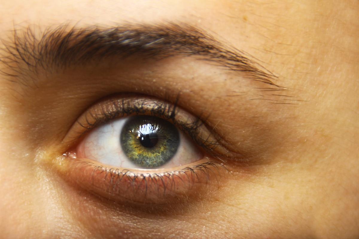 Bolsas de los ojos