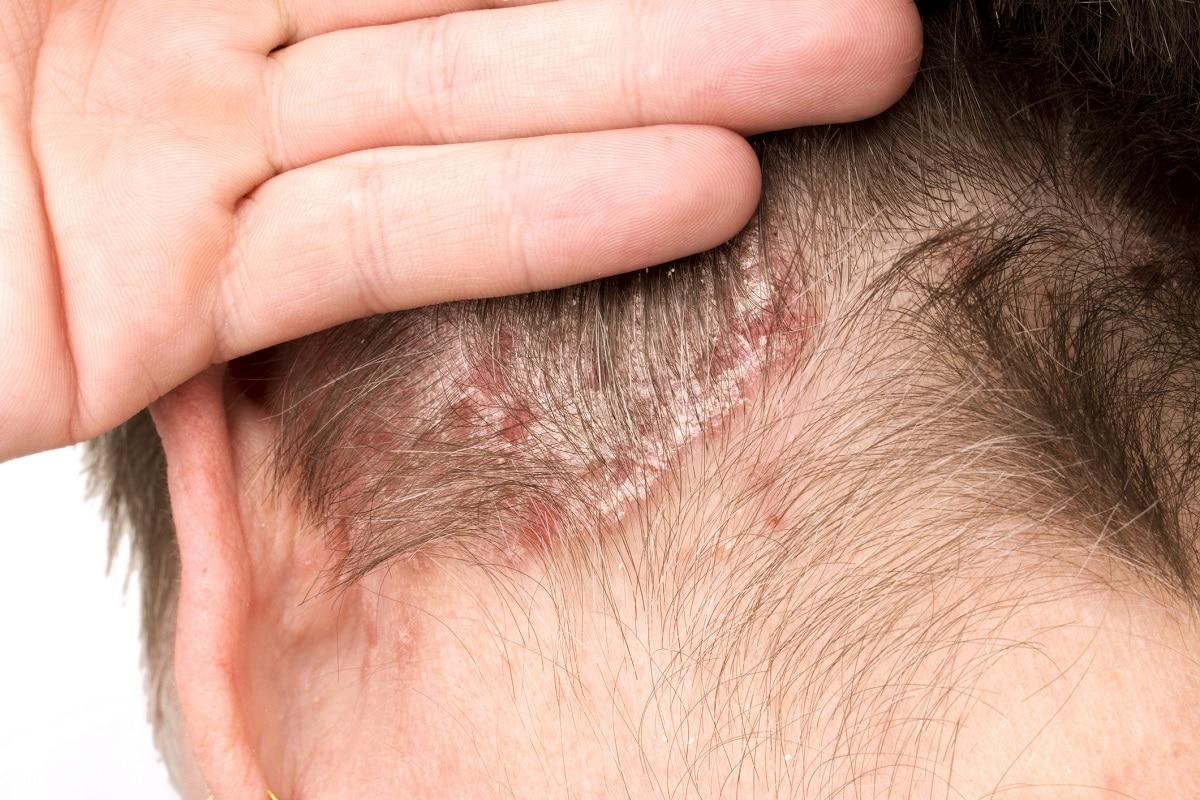 Síntomas de dermatitis