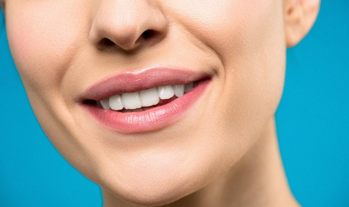 Cómo evitar las manchas blancas en los dientes