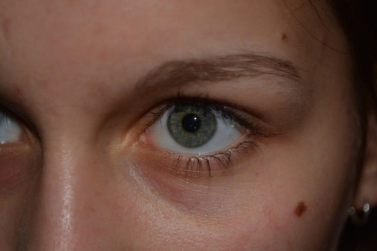 Lunares en la piel del rostro