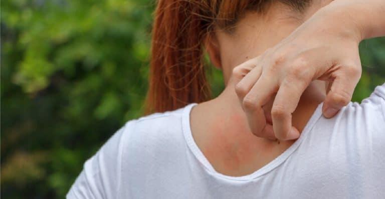 Dermatitis atópica en otoño